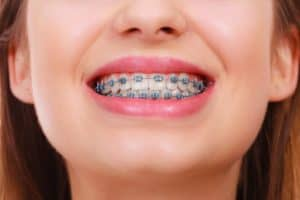 Mini Twin Braces